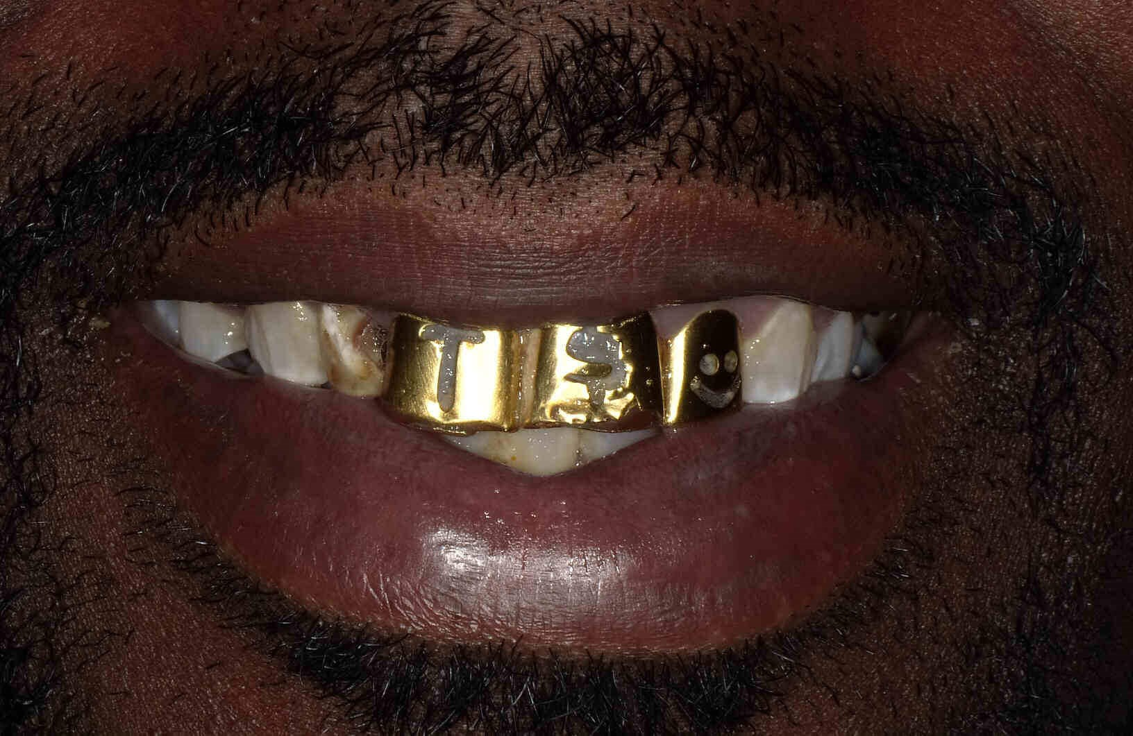 Gold Grill Removal in Atlanta Before