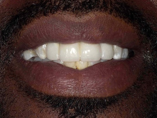 Gold Grill Removal in Atlanta After