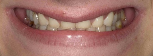 Dental Crowns and Bridge Before