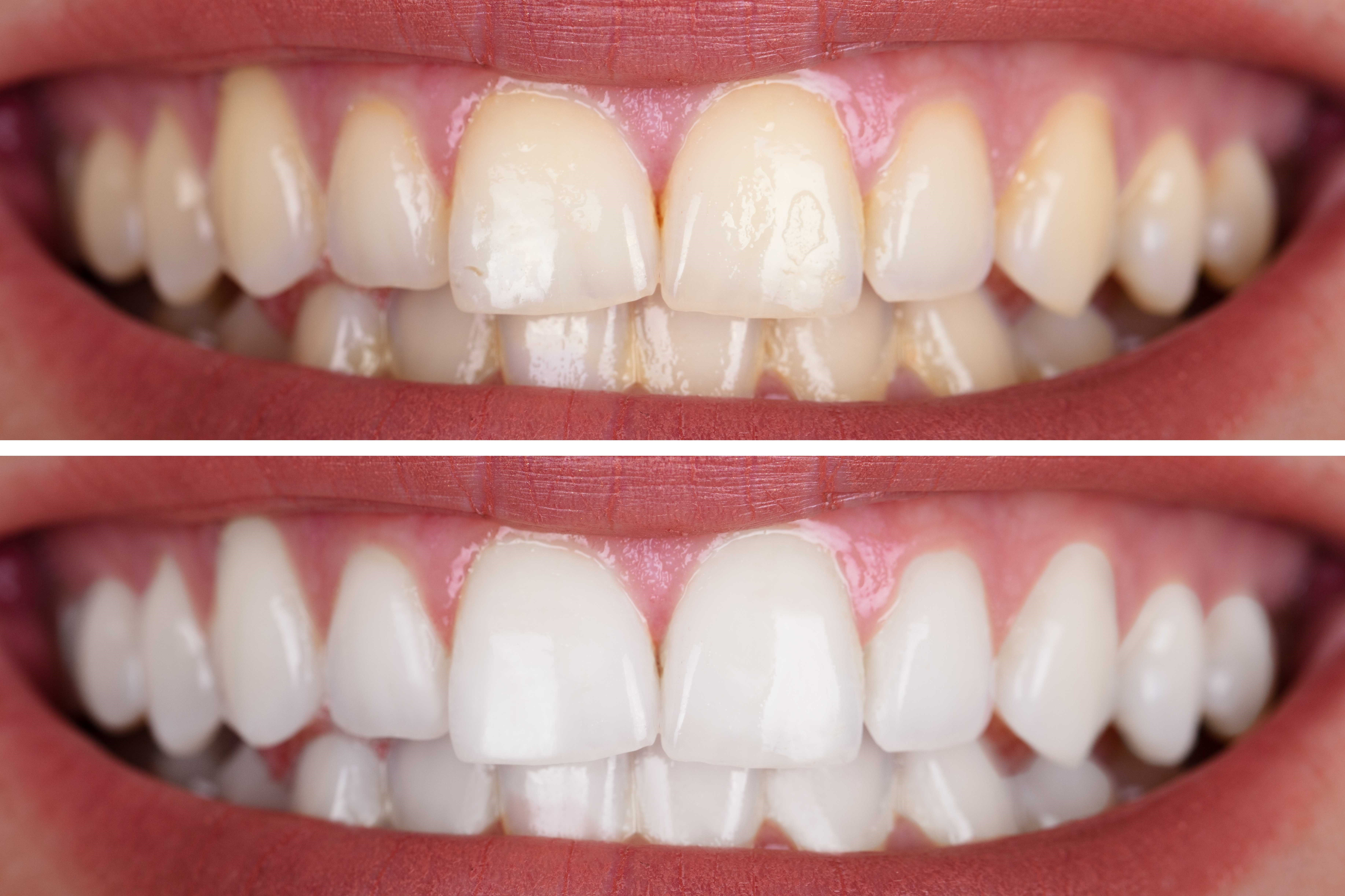 Teeth Whitening How Does It Work Is It Safe