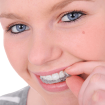 Cosmetic Orthodontics